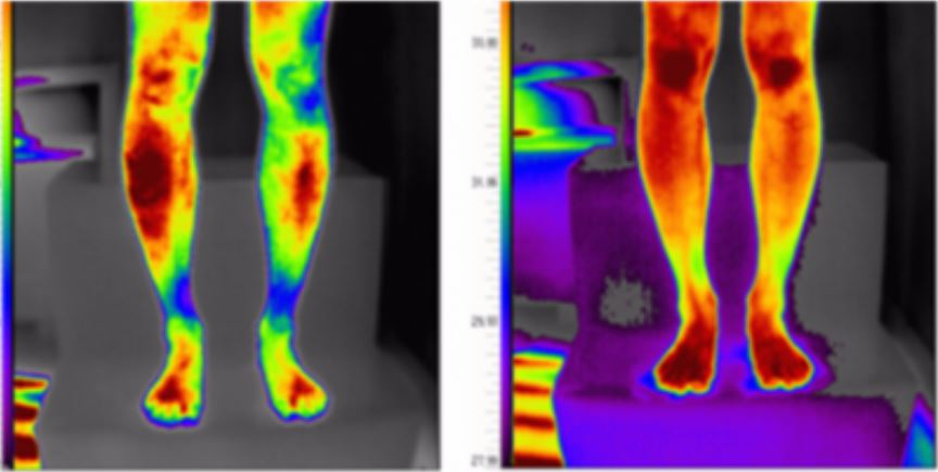 Sedona Wellness PEMF - Leg Circulation